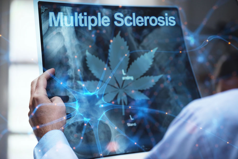 Can Medical Cannabis benefit people with Multiple Sclerosis?
